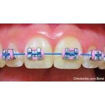 Aparelho Dentario