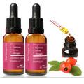 Aceite Rosa Mosqueta/ Presión En Frio/peeling/manchas/50 Ml