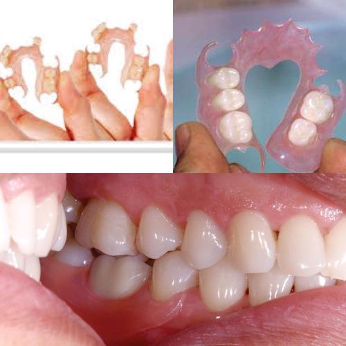a: prótesis dental, servicio laboratorio dental, mecanico