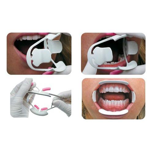 abridor de ortodoncia retractor de labio mejilla intraoral