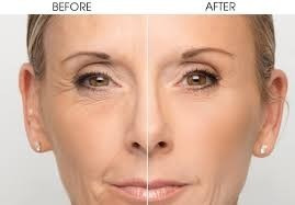 acido hialurónico despídete de arrugas y de  piel envejecida