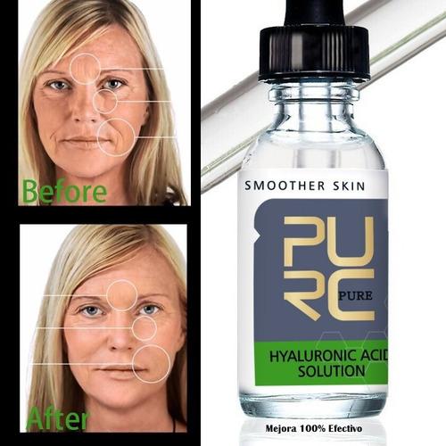 acido hialuronico rejuvenecimiento facial y arrugas