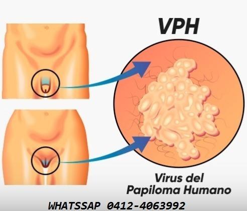 acido tricloro-acetico al 80% elimina verruga del vph