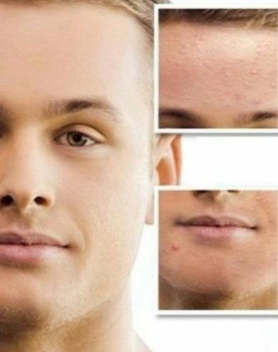 acne balance laca