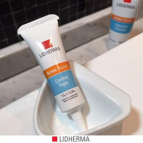 acnex depure control topic piel grasa acne lidherma