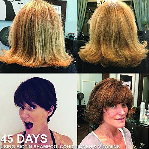Acondicionador Biotin Vitamin Hair Growth -   56.533 en Mercado Libre 2c0ee55803dd
