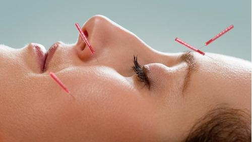 acupuntura medica humana
