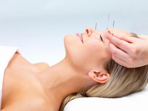 acupuntura, medicina china, ventosas. consultorio o domic