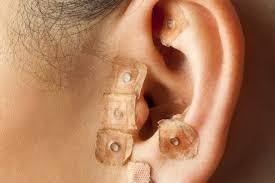 adelgace con acupuntura y estimulación del metabolismo