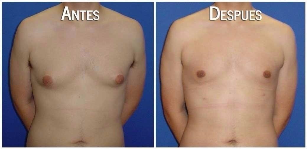Los hombres agrandan sus senos