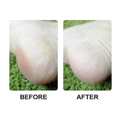 afeitadora de afeitar con pie eléctrico eliminador de piel