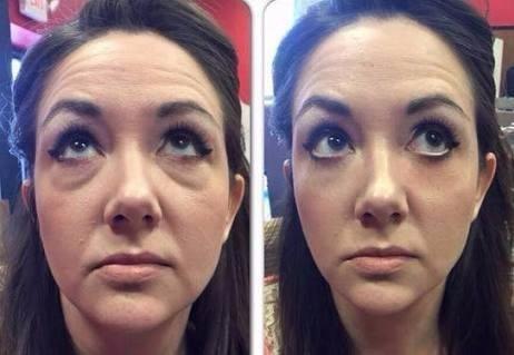 ageless - botox instântaneo. efeito em 3 minutos 10 saches