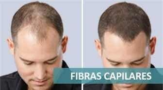 alopecia pelo en polvo caída del pelo recarga 100 g. !