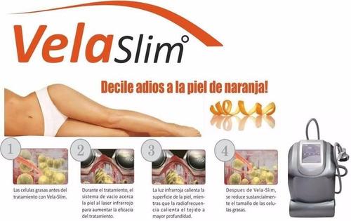 alquiler criolipolisis y velaslim promociones
