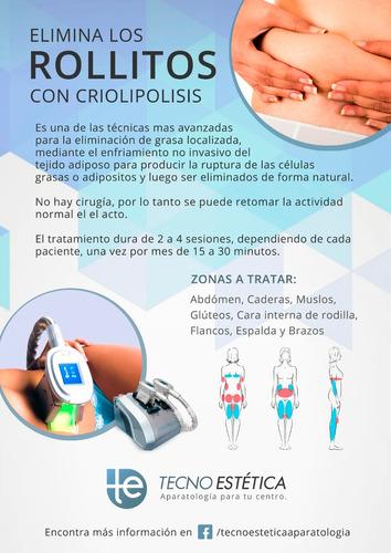 alquiler de criolipolisis sveltia (flete incluido)