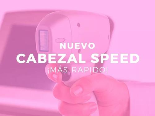 alquiler equipo depilación láser definitiva trio speed