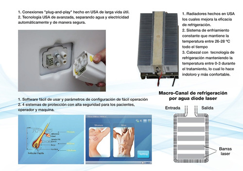 alquiler maquina depilación laser tegnologia soprano ice pla