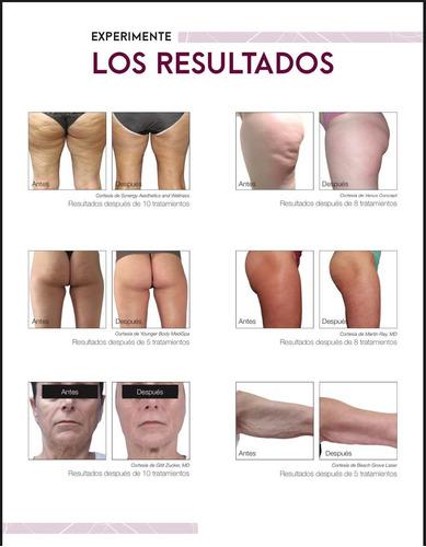 alquiler venus legacy tratamiento corporal facial multipolar