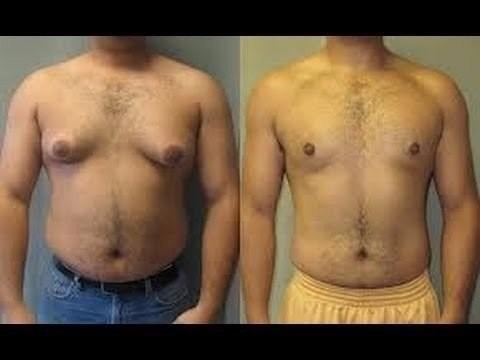 amino adios senos ginecomastia grasa en el pecho en verano