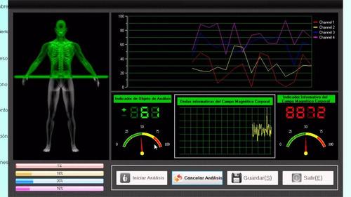 analizador cuantico de resonancia magnetica
