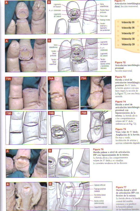Anatomia Clinica Del Aparato Locomotor Mano Y Muñeca, 1 Vol ...