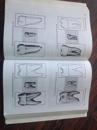 anatomia dental fisiologia y oclusión wheeler ed 7