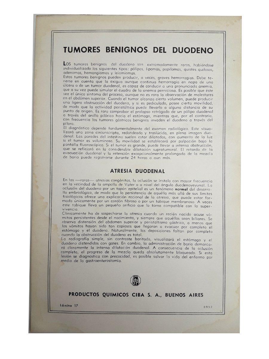 Anatomia Patologica Estomago Y Duodeno 18 Laminas Todo Color - $ 38 ...