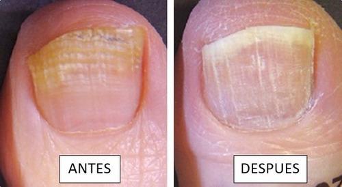 antimicotico - laca para hongo de uñas