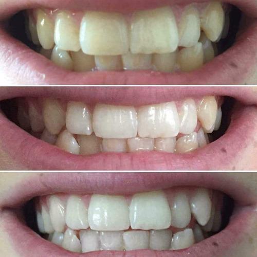 ap24 por 6 crema dental blanqueadora nuskin envio gratis