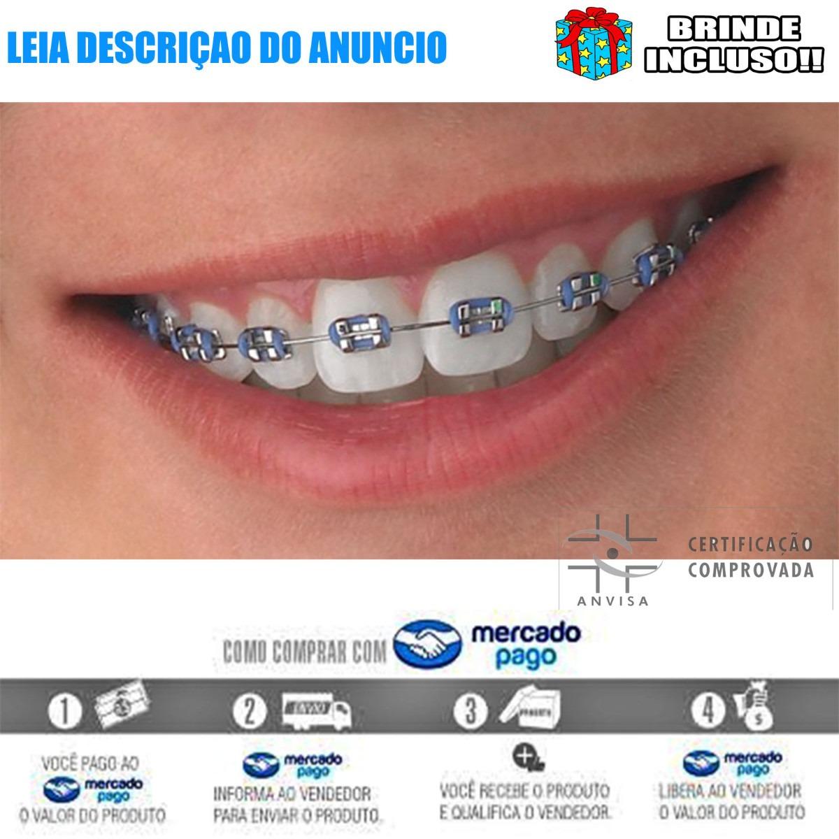 74efdd47e Aparelho Dentario 2 Pessoas Completa 2019 + Frete Gratis - R  229