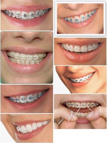 aparelho dentário
