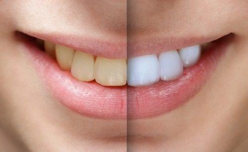 Aparelho Silicone Clareador Dental Com Led Usb Dentes Branco R 80