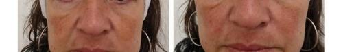 aplicación botox hialuronico medicina estética elim verrugas