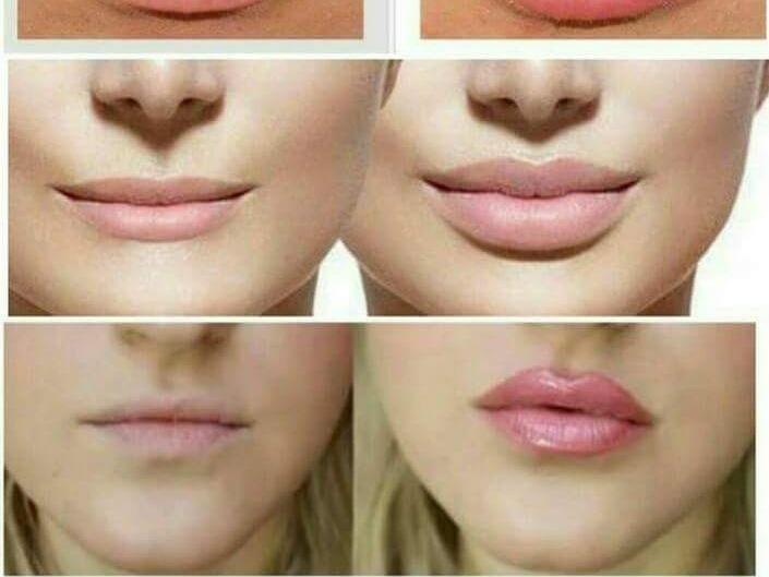 Resultado de imagen para labios acido hialuronico