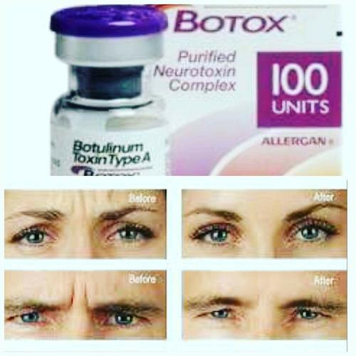 aplicación de toxina botulínica botox@