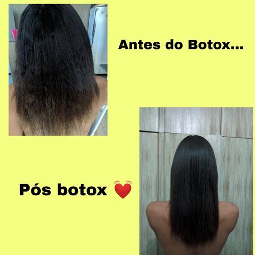aplicação de botox e progressiva