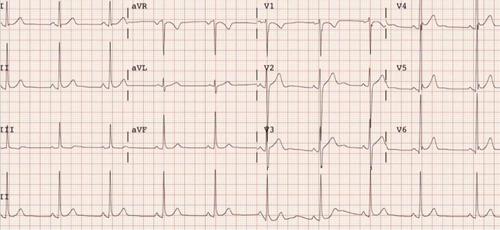 apto físico, electrocardiograma. estudios cardiológicos