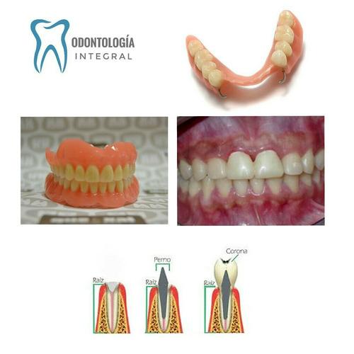 arreglos dentales - restauraciones - estética