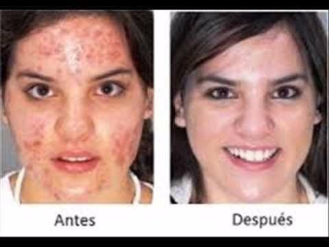 asepxia cicatrizes e acne 30g