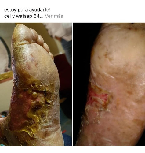 asesoria grátis enfermedades comunes o crónicas degenerativa