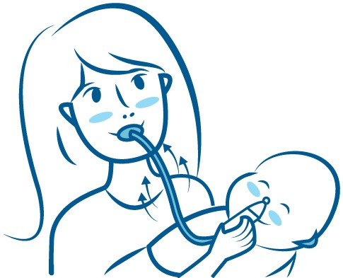 aspirar baby com estojo - aspirador nasal envio imediato!!