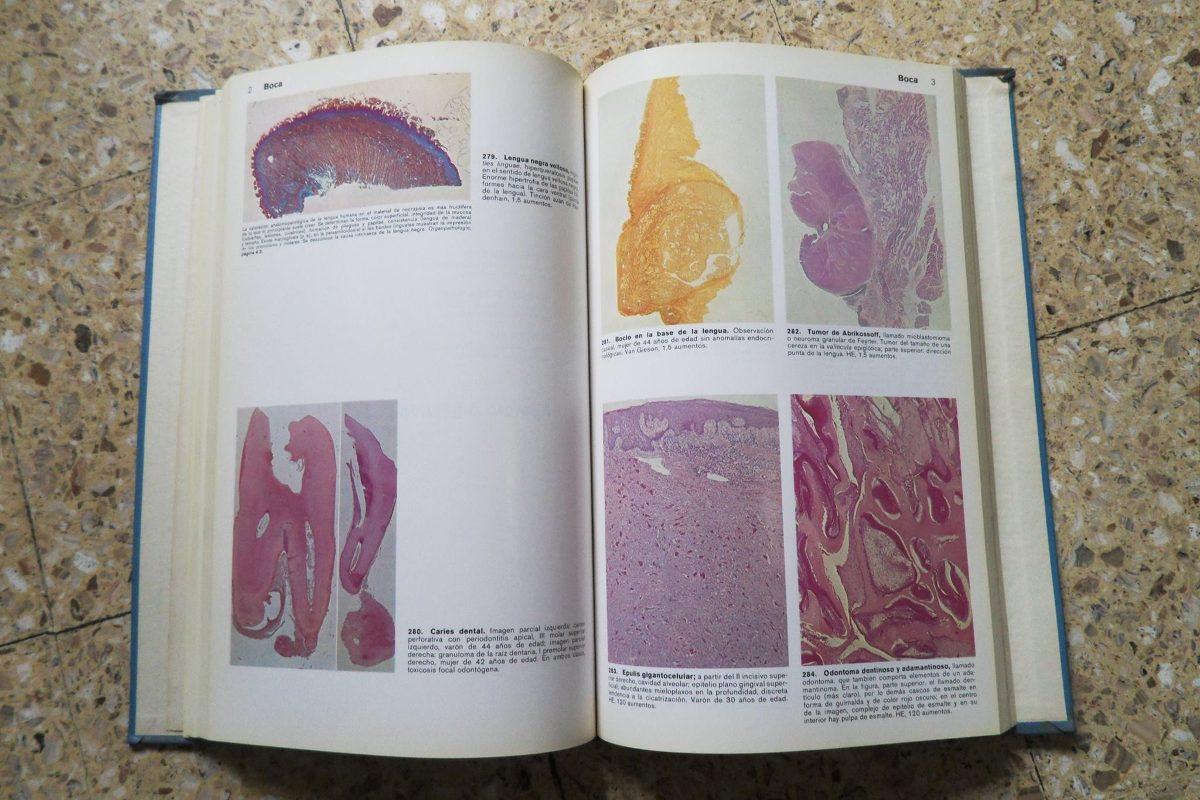 Atlas De Anatomía Patológica. Doerr Schumann Ule - $ 450,00 en ...