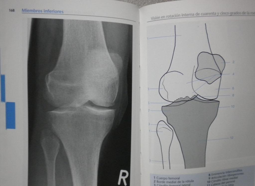 Atlas De Bolsillo De Anatomía Radiológica - Panamericana - $ 86.000 ...