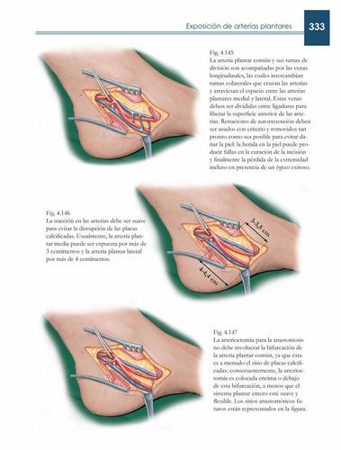 atlas de cirugía de las arterias / cavallaro / amolca