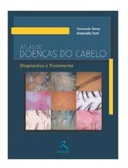 atlas de doenças do cabelo - diagnóstico e tratamento
