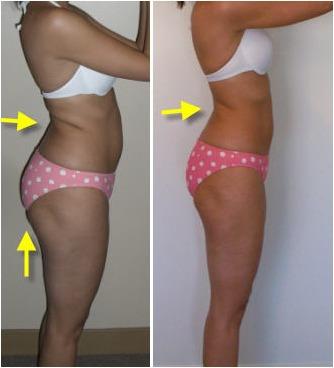 baja de peso 1 a 2 kilos x semana!