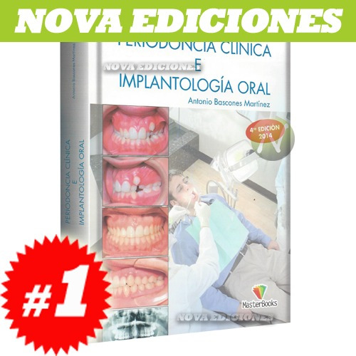 bascones, periodoncia clínica e implantología oral 1 tomo