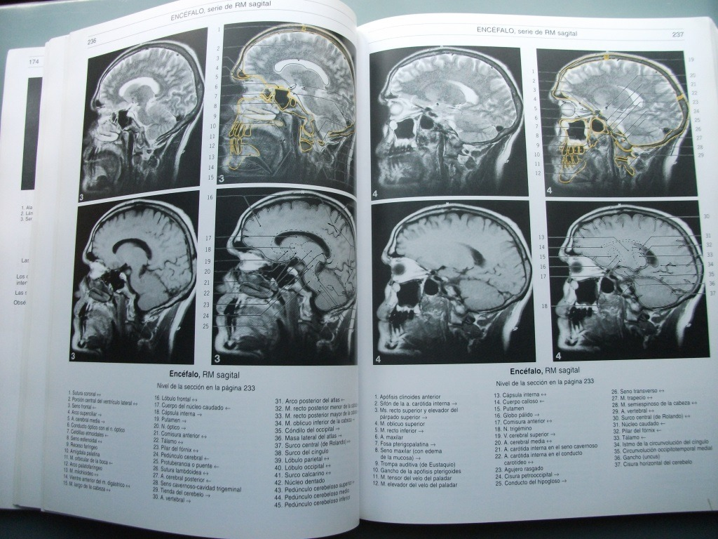 Bases Anatómicas Del Diagnóstico Por Imagen. Fleckenstein ...