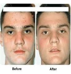 Benzo Derma, (crema) Para Las Afecciones Cutáneas, Eczema,