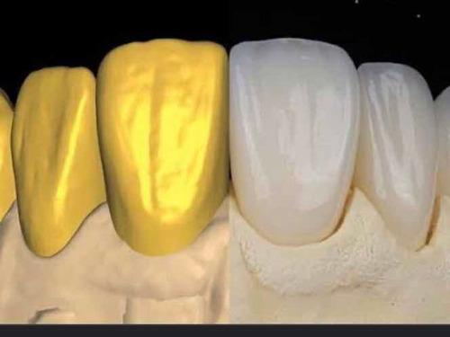 biblioteca de dentes para exocad/sirona mais de 500 formatos
